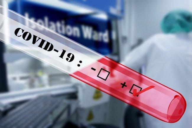 Ermənistanda son sutkada 374 nəfər koronavirusa yoluxub