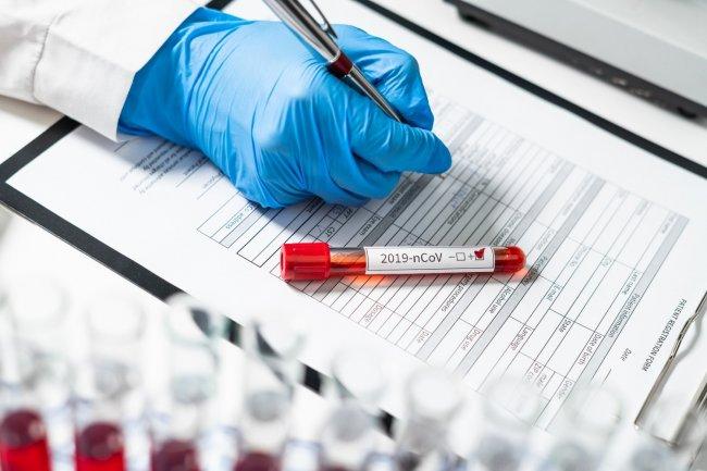 Azərbaycanda daha 544 nəfər koronavirusa yoluxub, 8 nəfər vəfat edib